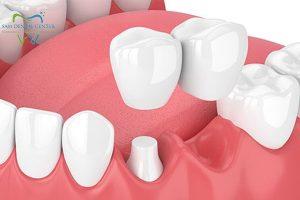 بریج دندان کانتی لور