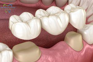پل دندانی یا بریج دندان