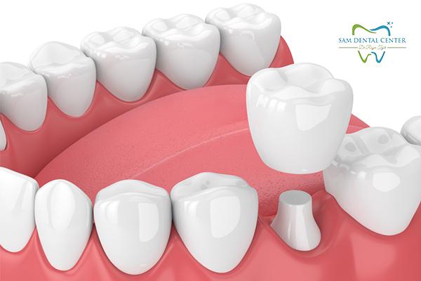پوسیدگی دندان روکش شده