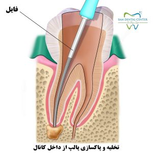 عصب کشی دندان یا درمان ریشه