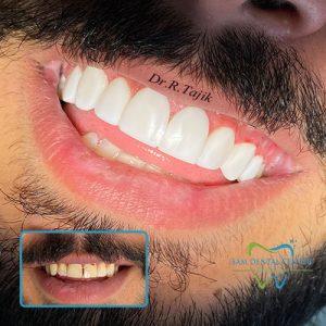 دندانپرشک کرج دکتر رویا تاجیک کامپوزیت کرج