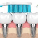 مراقبت از ایمپلنت دندان و روش نگهداری از ایمپلنت