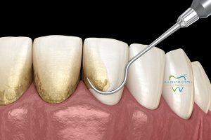 جرمگیری دندان و برساژ