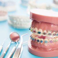 SureSmile-Orthodontic-Technology