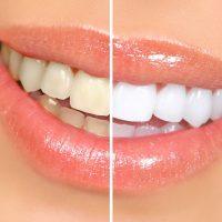 بیلیچینگ دندان