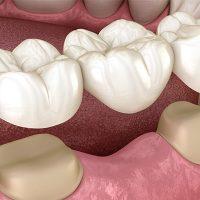 بریج روکش دندان