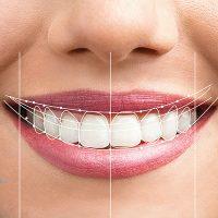 اصلاح طرح لبخند کلینیک دندانپزشکی کرج